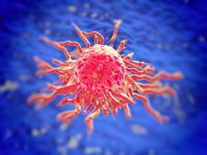 obrázok karcinom pankreas